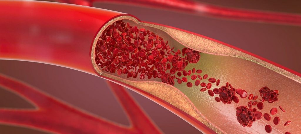 Finding-Might-Cast-Light-On-Absent-Link-Between-Atherosclerosis-And-Aging